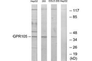 Image no. 1 for anti-Purinergic Receptor P2Y, G-Protein Coupled, 14 (P2RY14) (AA 146-195) antibody (ABIN1535620)