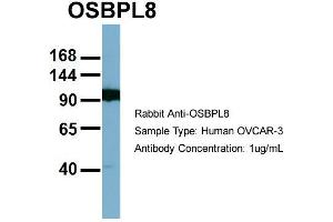 Image no. 2 for anti-Oxysterol Binding Protein-Like 8 (OSBPL8) (Middle Region) antibody (ABIN2781876)