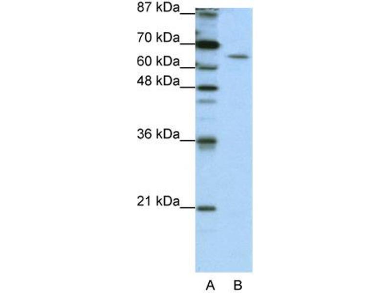 Western Blotting (WB) image for anti-Staufen, RNA Binding Protein, Homolog 1 (Drosophila) (STAU1) (N-Term) antibody (ABIN183977)