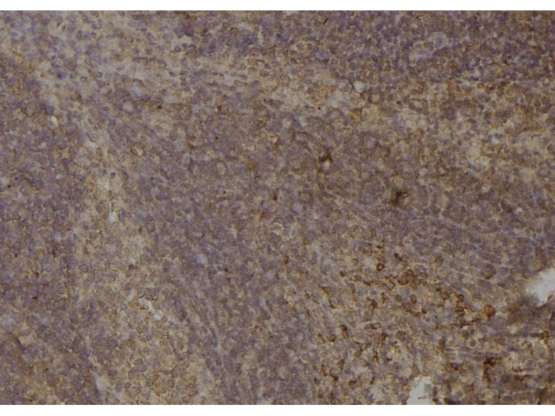Image no. 4 for anti-Odd-Skipped Related 1 (Drosophila) (OSR1) (pSer339) antibody (ABIN6269753)