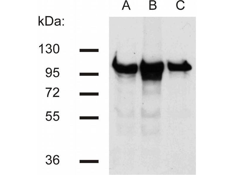 Western Blotting (WB) image for anti-Catenin (Cadherin-Associated Protein), beta 1, 88kDa (CTNNB1) (AA 441-448), (C-Term) antibody (ABIN457419)