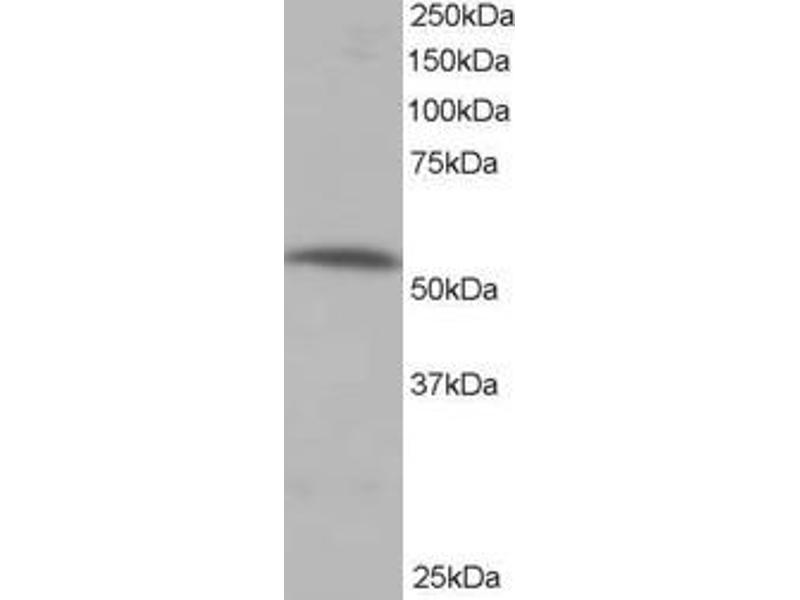 Western Blotting (WB) image for anti-Protein Phosphatase 2, Regulatory Subunit B', alpha (PPP2R5A) (C-Term) antibody (ABIN257673)