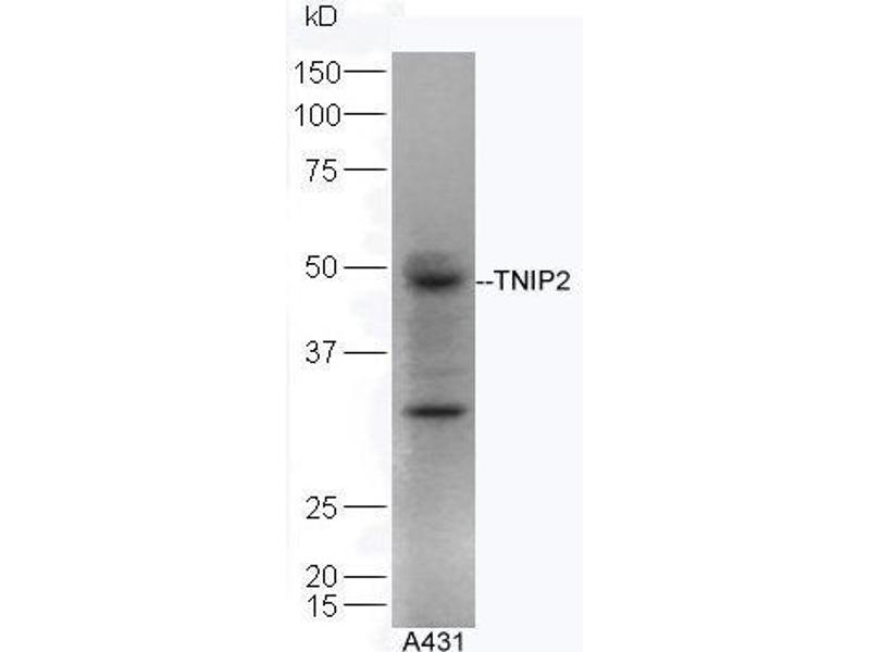 Western Blotting (WB) image for anti-TNFAIP3 Interacting Protein 2 (TNIP2) antibody (ABIN872901)