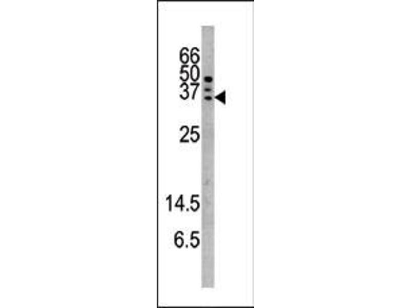 image for anti-Caspase 6 antibody (Caspase 6, Apoptosis-Related Cysteine Peptidase) (pSer257) (ABIN358091)