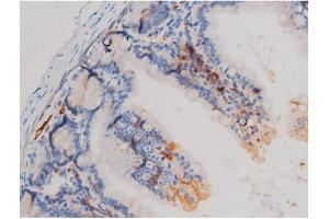 Image no. 4 for anti-Cell Division Cycle 25 Homolog A (S. Pombe) (CDC25A) (pSer75) antibody (ABIN6255495)