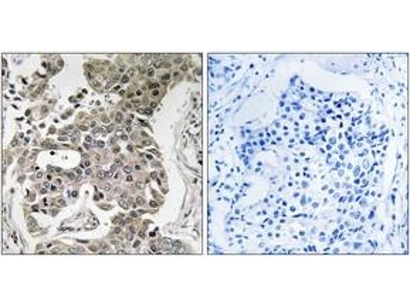 Immunohistochemistry (IHC) image for anti-Protein Phosphatase 2, Regulatory Subunit A, beta (PPP2R1B) (AA 552-601) antibody (ABIN1535351)