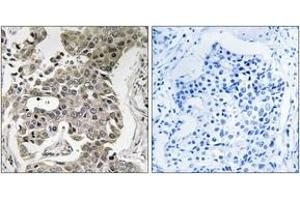 Immunohistochemistry (IHC) image for anti-PPP2R1B Antikörper (Protein Phosphatase 2, Regulatory Subunit A, beta) (ABIN1535351)