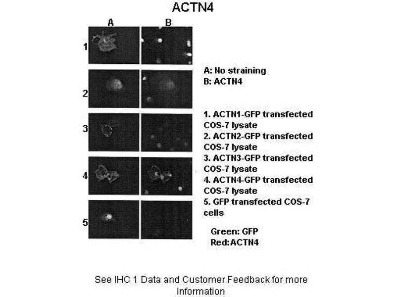 Immunohistochemistry (IHC) image for anti-Actinin, alpha 4 (ACTN4) (N-Term) antibody (ABIN2775288)