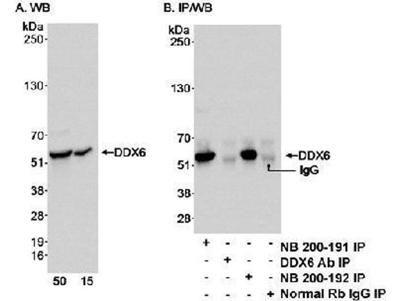 Western Blotting (WB) image for anti-DEAD (Asp-Glu-Ala-Asp) Box Polypeptide 6 (DDX6) (AA 1-50) antibody (ABIN152327)