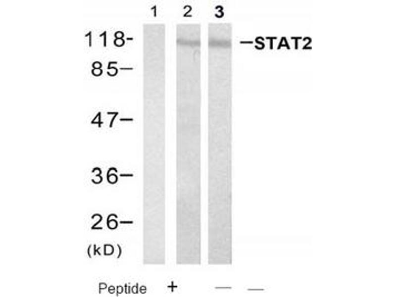 image for anti-STAT2 antibody (Signal Transducer and Activator of Transcription 2, 113kDa) (Tyr690) (ABIN319409)