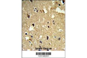 Immunohistochemistry (IHC) image for anti-TUBB1 antibody (Tubulin, beta 1) (ABIN2498116)