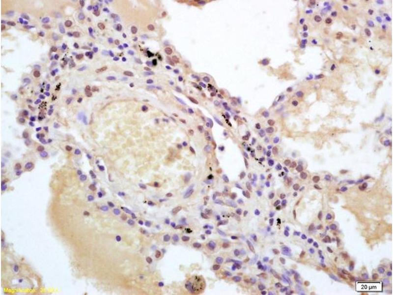 Immunohistochemistry (IHC) image for anti-Interferon Regulatory Factor 7 (IRF7) (AA 420-470) antibody (ABIN682603)