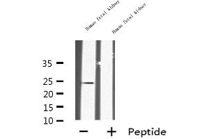 Image no. 2 for anti-Insulin-Like 6 (INSL6) antibody (ABIN6258914)