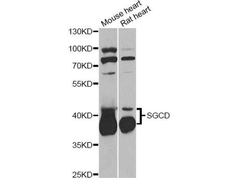 Image no. 2 for anti-Sarcoglycan, delta (35kDa Dystrophin-Associated Glycoprotein) (SGCD) antibody (ABIN6567901)