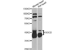 Image no. 2 for anti-Sarcoglycan, delta (35kDa Dystrophin-Associated Glycoprotein) (SGCD) antibody (ABIN6567901)