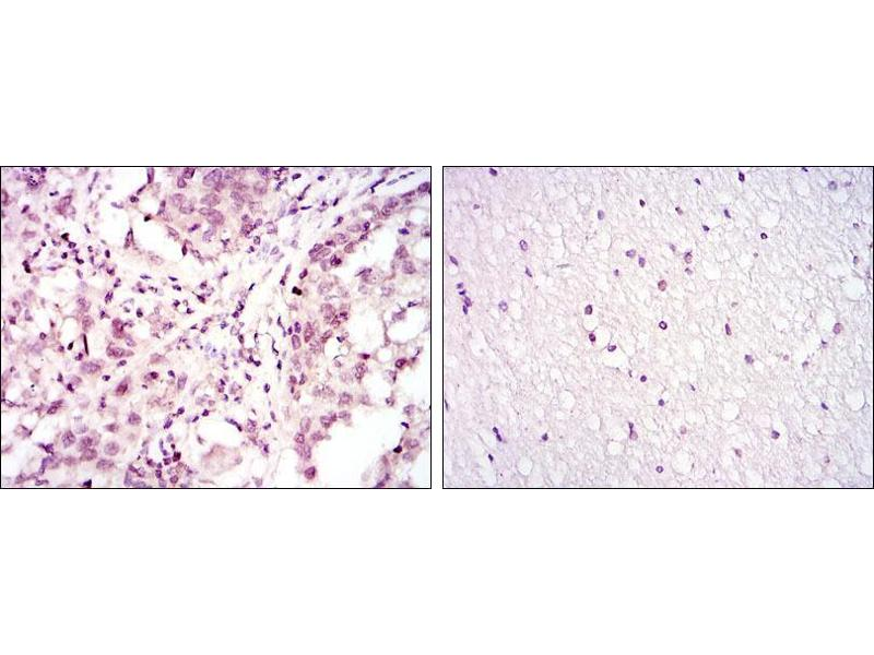 Immunohistochemistry (IHC) image for anti-Activating Transcription Factor 2 (ATF2) antibody (ABIN968968)