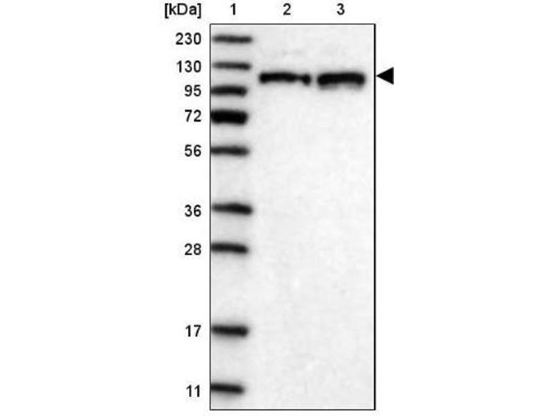 Western Blotting (WB) image for anti-RNA Binding Motif Protein 15 (RBM15) antibody (ABIN4349583)