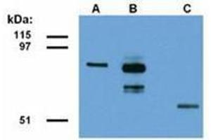 Image no. 1 for anti-Family with Sequence Similarity 175, Member A (FAM175A) (AA 1-313), (N-Term) antibody (ABIN487439)
