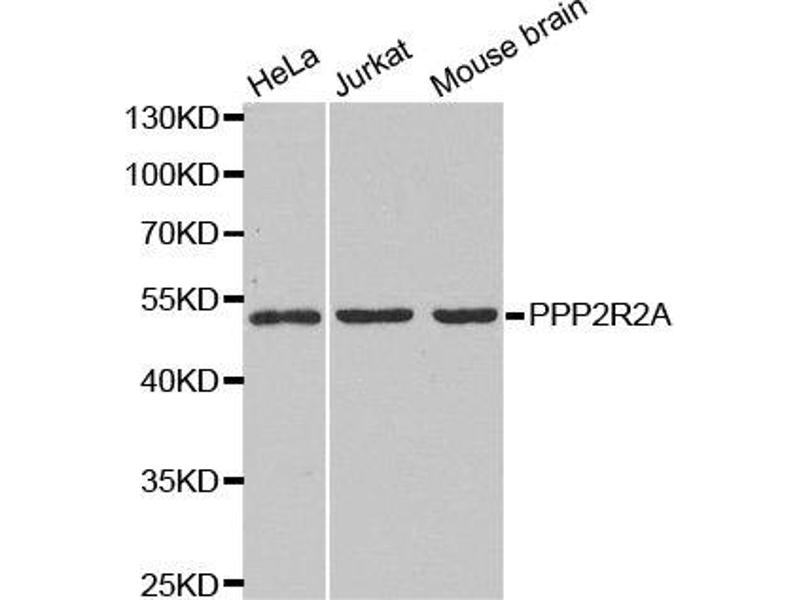 Western Blotting (WB) image for anti-Protein Phosphatase 2 Regulatory Subunit 2A (PPP2R2A) antibody (ABIN1874225)