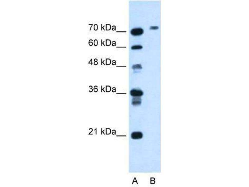 Western Blotting (WB) image for anti-Butyrylcholinesterase (BCHE) (N-Term) antibody (ABIN630462)