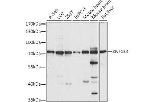 Image no. 1 for anti-Zinc Finger Protein 133 (ZNF133) antibody (ABIN6717374)