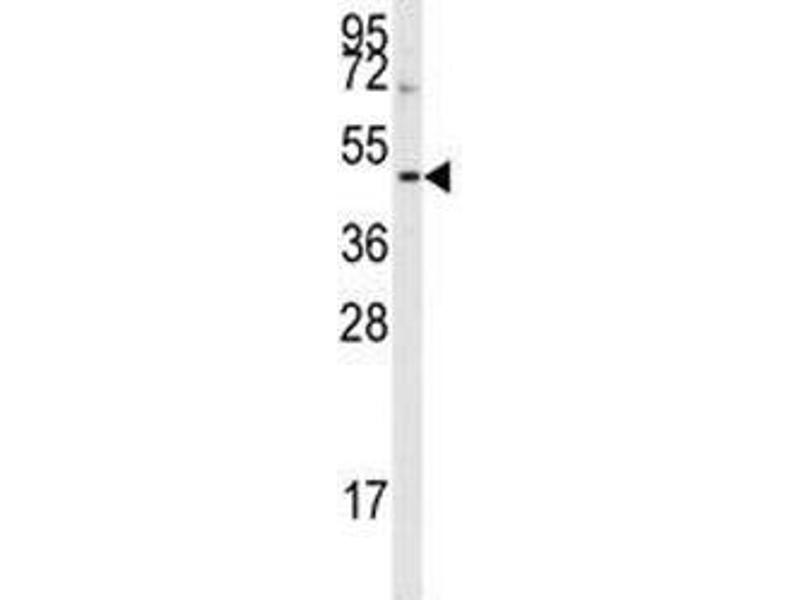 Western Blotting (WB) image for anti-Aurora Kinase B (AURKB) (AA 6-35) antibody (ABIN3030076)