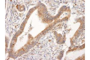 Immunohistochemistry (Paraffin-embedded Sections) (IHC (p)) image for anti-BID antibody (BH3 Interacting Domain Death Agonist) (AA 60-120) (ABIN153045)