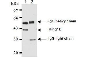 Image no. 1 for anti-Ring Finger Protein 2 (RNF2) antibody (ABIN1449179)