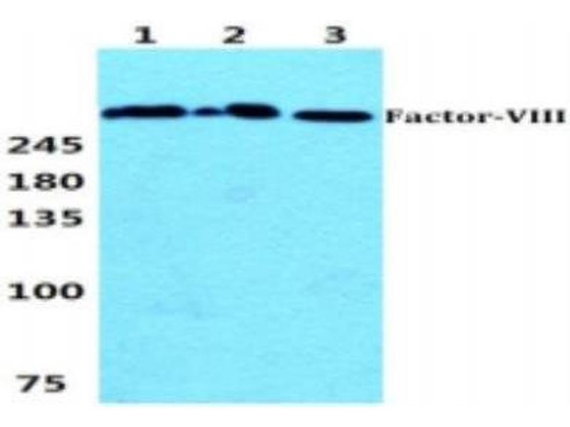Western Blotting (WB) image for anti-Coagulation Factor VIII (F8) (C-Term) antibody (ABIN449338)