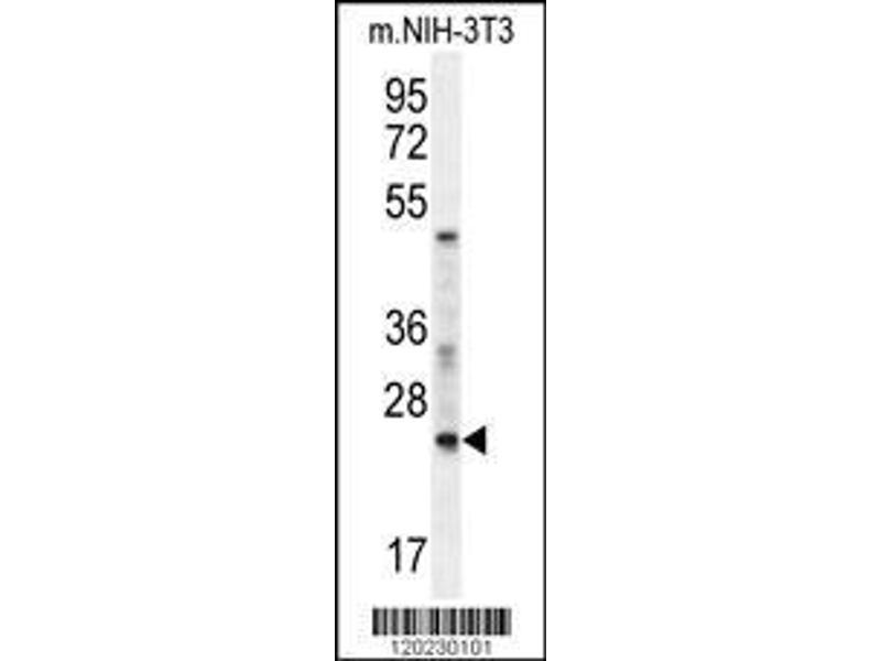 Western Blotting (WB) image for anti-RAN, Member RAS Oncogene Family (RAN) (AA 112-140), (Center) antibody (ABIN652226)