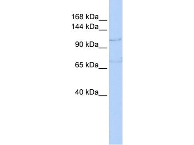 Western Blotting (WB) image for anti-ZEB1 antibody (Zinc Finger E-Box Binding Homeobox 1) (N-Term) (ABIN486932)