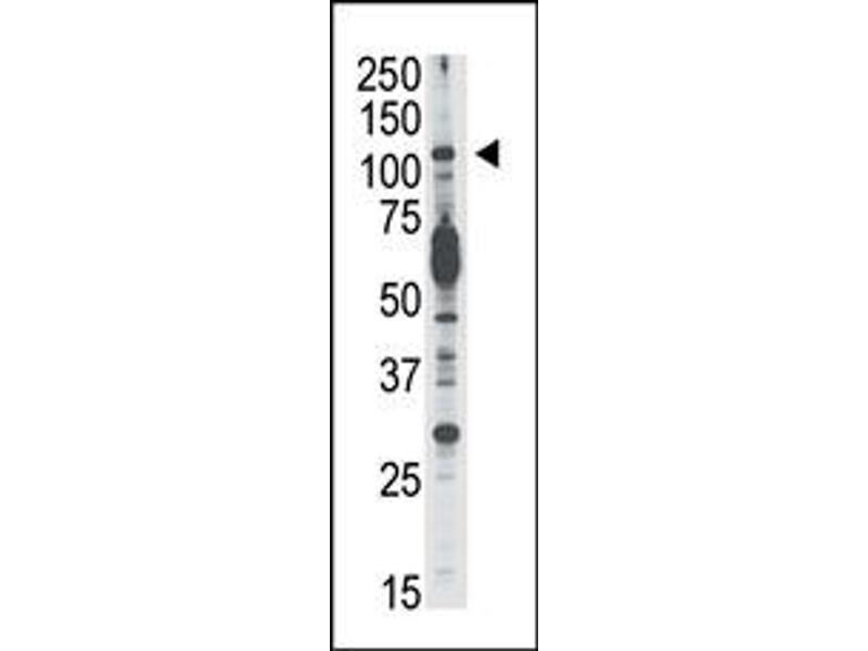 Image no. 1 for anti-PIK3CD (C-Term) antibody (ABIN360448)