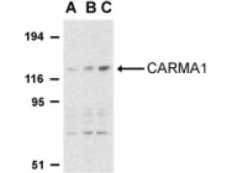 Western Blotting (WB) image for anti-Caspase Recruitment Domain Family, Member 11 (CARD11) (C-Term) antibody (ABIN4287879)