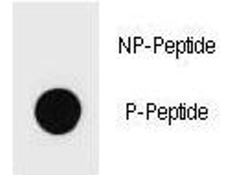 Dot Blot (DB) image for anti-Mast/stem Cell Growth Factor Receptor (KIT) (pSer821) antibody (ABIN3031556)