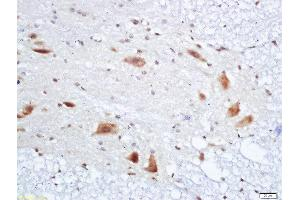 Image no. 2 for anti-Peripheral Myelin Protein 22 (PMP22) (AA 117-133) antibody (ABIN726680)