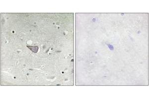 Image no. 1 for anti-Armadillo Repeat Containing, X-Linked 3 (ARMCX3) (AA 291-340) antibody (ABIN2889794)