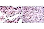 Immunohistochemistry (IHC) image for anti-Adrenergic, Beta, Receptor Kinase 1 (ADRBK1) antibody (ABIN4880192)