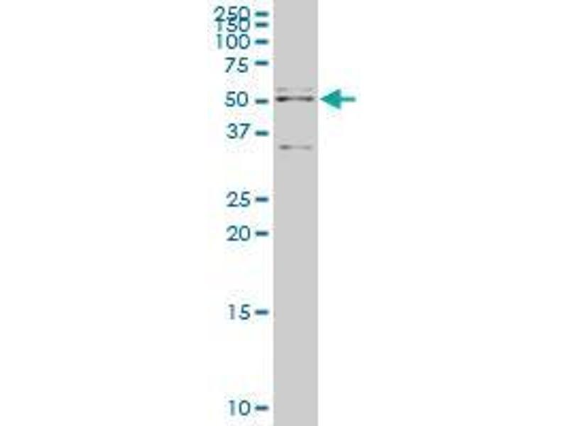 Immunohistochemistry (IHC) image for anti-Apoptosis Inhibitor 5 antibody (API5) (AA 400-504) (ABIN394905)