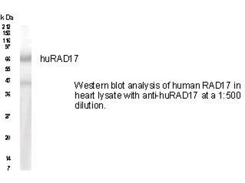 Western Blotting (WB) image for anti-RAD17 Homolog (S. Pombe) (RAD17) (AA 2-15), (N-Term) antibody (ABIN151253)