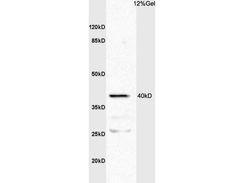 SDS-PAGE (SDS) image for anti-TNFRSF1A antibody (Tumor Necrosis Factor Receptor Superfamily, Member 1A) (AA 22-72) (ABIN682018)