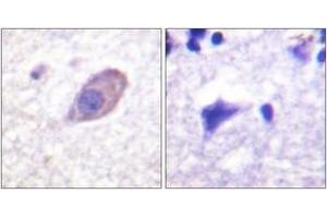 Image no. 2 for anti-Potassium Inwardly-Rectifying Channel, Subfamily J, Member 16 (KCNJ16) (AA 369-418) antibody (ABIN1532704)