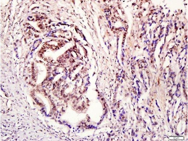 Immunohistochemistry (Paraffin-embedded Sections) (IHC (p)) image for anti-Signal Transducer and Activator of Transcription 3 (Acute-Phase Response Factor) (STAT3) (AA 685-725), (pTyr705) antibody (ABIN732638)