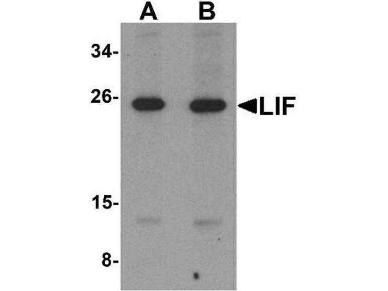 Western Blotting (WB) image for anti-LIF antibody (Leukemia Inhibitory Factor) (Center) (ABIN4330945)