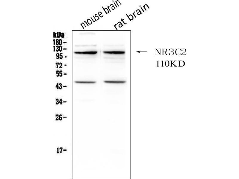 Western Blotting (WB) image for anti-Nuclear Receptor Subfamily 3, Group C, Member 2 (NR3C2) (AA 950-984), (C-Term) antibody (ABIN3043575)