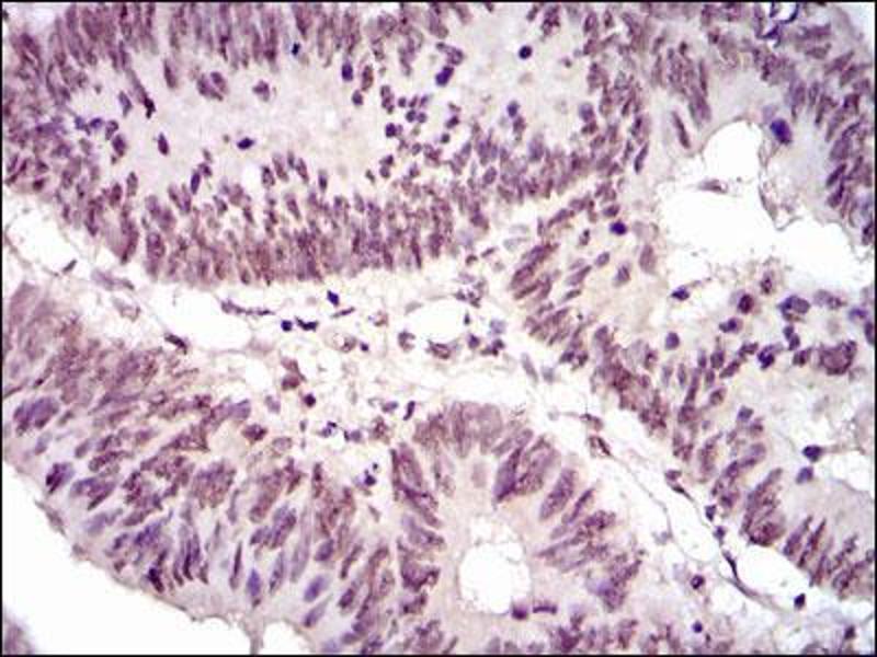 Immunohistochemistry (IHC) image for anti-NCK Adaptor Protein 1 (NCK1) antibody (ABIN4880888)