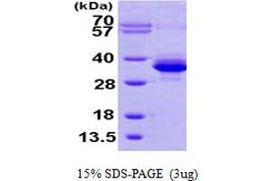 Image no. 1 for Phosphomannomutase 1 (PMM1) (AA 1-262) protein (His tag) (ABIN667263)