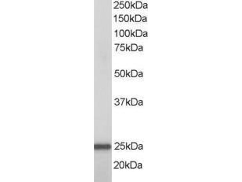 image for anti-RAN, Member RAS Oncogene Family (RAN) (AA 2-14) antibody (ABIN1494066)