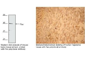 Immunohistochemistry (IHC) image for anti-Fas (TNF Receptor Superfamily, Member 6) (FAS) antibody (ABIN266061)