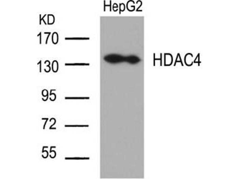 image for anti-HDAC4 antibody (Histone Deacetylase 4) (Ser632) (ABIN197338)