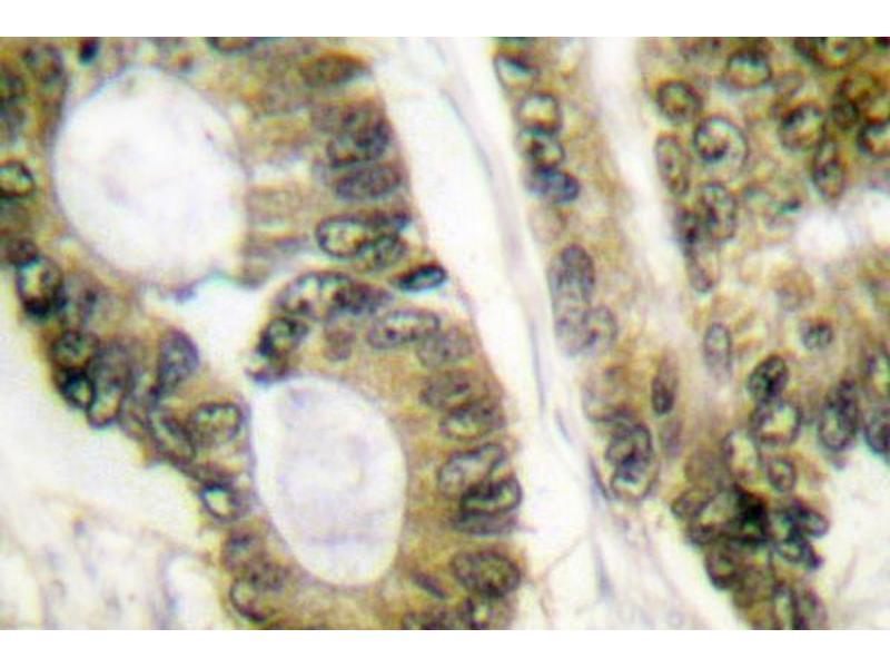 image for anti-Adenomatous Polyposis Coli (APC) antibody (ABIN265313)